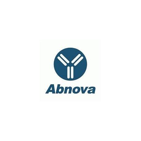 ACVR2B polyclonal antibody (A01)