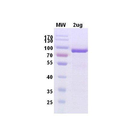MousePAD2 Protein-arginine deiminase type-2 Mouse Recombinant Protein-10 ug